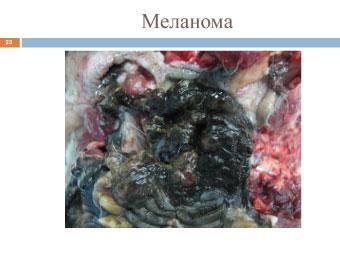 Узелковая злокачественная меланома собаки