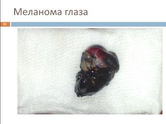 Меланома глаза кошки