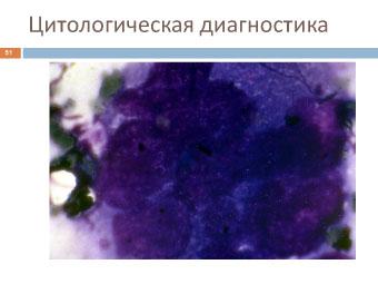 Меланома собаки: Цитологическая диагностика.