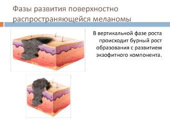 Меланома собаки: фазы развития