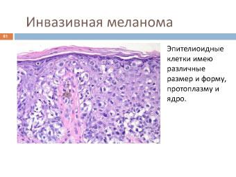 Меланома собаки: инвазивная меланома