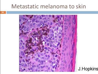 Меланома собаки: метастазирование в коже
