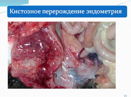 Слайд 10. Кистозное перерождение эндометрия при пиометре