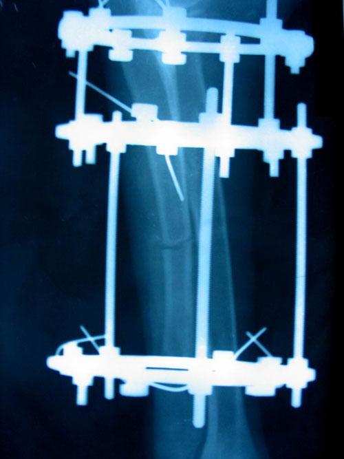 Удлинение лучевой кости