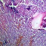 Кишечная непроходимость + колит: Гистология почки при панкреатите у кошки