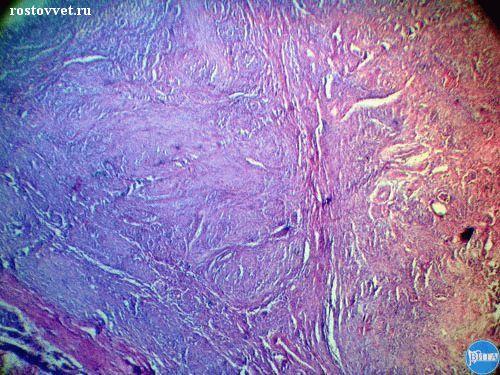 Аденокарцинома: Гистология