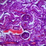 Липидоз у кошки: Гистология печени