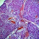 Кишечная непроходимость + колит: Гистология поджелудочной железы