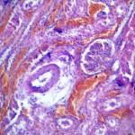 Коронавирусный энтерит у кошки: Гистология