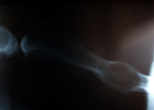 Экссудат из остеомиелитной полости содержит бактерии и грибы. Рентген