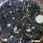 Карцинома ануса: Гистология