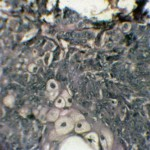 Карцинома у пуделя: Гистология