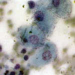 Карцино-саркома молочной железы у кошки: Цитология