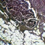 Гистология печени