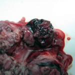 Гемангиосаркома в блюшной полости у собаки: Макрофото