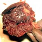 Метастаз в миокарде