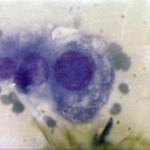 Опухоль слюнной железы у собаки: Цитология