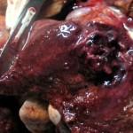 Тромобоэмоблия легочной артерии, вызванная D. immitis, с последующим абсцедированием у собаки