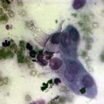 Прикорневая гранулема со свищем: Цитология