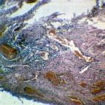 Сирингоэпителиома и гемангиома: Гистология