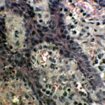 Ангиоматозный эпулис у боксера: Цитология