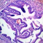 Церуминома у кота: Гистология