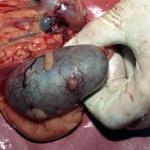 Метастаз в почке, на заднем плане опухоль