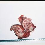 Плоскоклеточный рак кожи: Макрофото