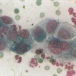 Аденокарцинома слюнной железы у кота.