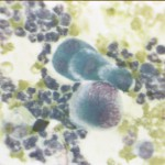 Экссудат из грудной клетки при остеосаркоме у собаки: Цитология