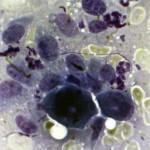 Остеосаркома у ризеншнауцера: Цитология