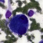 Меланома у ротвейлера:  Цитология