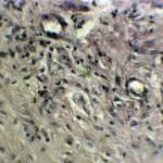 Фибринозный полип и рак мочевого пузыря у суки бультерьера: Гистология