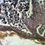 Плазмоцитома у собаки: Гистология