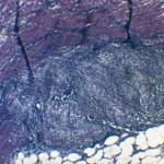Диссеминированная лимфома кишечника у ротвейлера: Гистология