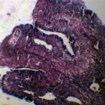 Опухоль в носовой полости у кота: Цитология