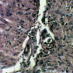 Плоскоклеточный рак кожи: Гистология