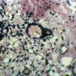 Гемангиосаркома в блюшной полости у собаки: Гистология