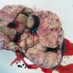Огромная опухоль печени у собаки: Макрофото
