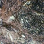 Полип в тонком кишечнике с инвагинацией и кишечной непроходимостью: Гистология