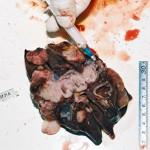 Рак печени у кошки: Макрофото