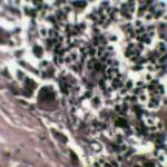 Гистология надпочечника