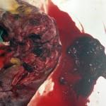 Остеосаркома запястья: Макрофото
