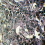 Фибросаркома у добермана: Гистология