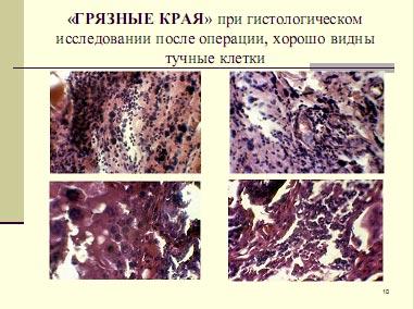 Гистологическое исследование мастоцитомы. Тучные клетки