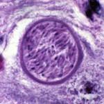 Neospora caninum в головном мозге
