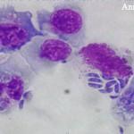 Неоспоры в лимфоцитах
