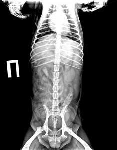 Вентро-дорсальная проекция: в правой почке визуализируется конкремент продолговатой формы размером  27мм на 13мм