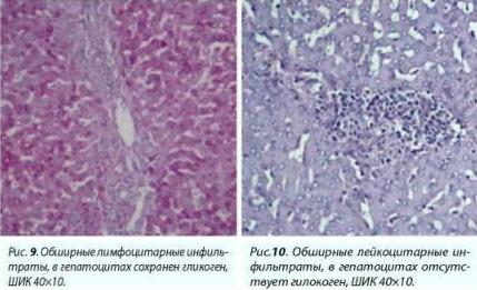 Эрлихиоз собак. Ehrlichia  canis. Некроз гепатоцитов. Жировая дегенерация.