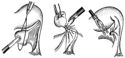 Овариэктомия